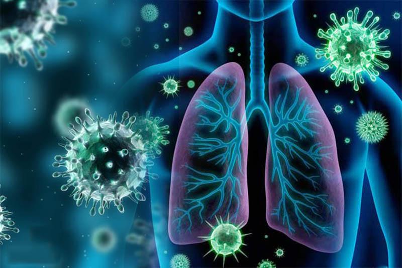 Phế cầu khuẩn là nguyên nhân phổ biến gây bệnh viêm phế quản phổi