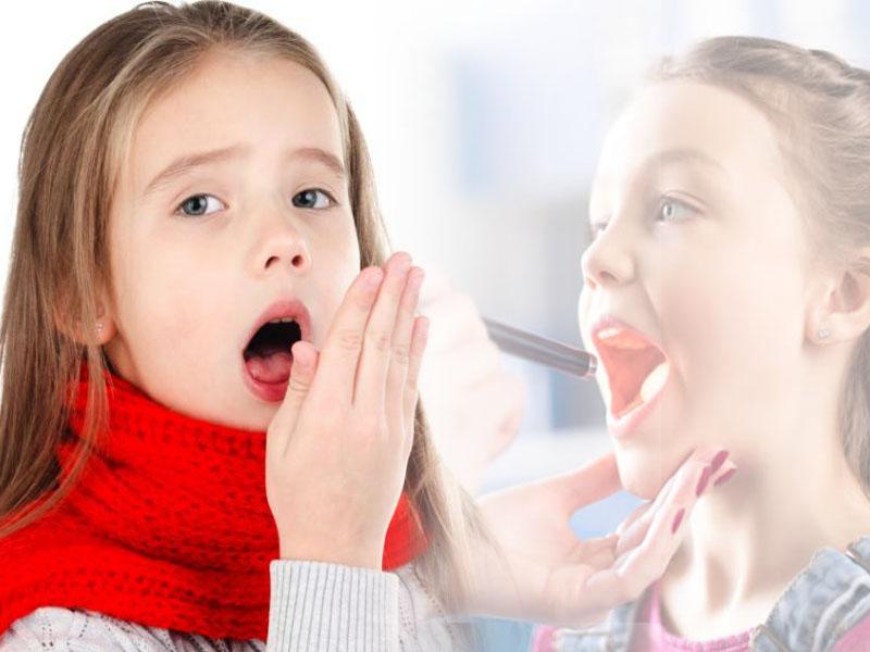 Trẻ bị viêm amidan ho nhiều cảnh báo điều gì