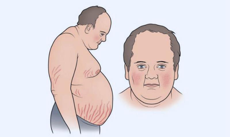 Hội chứng Cushing do dùng thuốc Corticoid liều cao, kéo dài