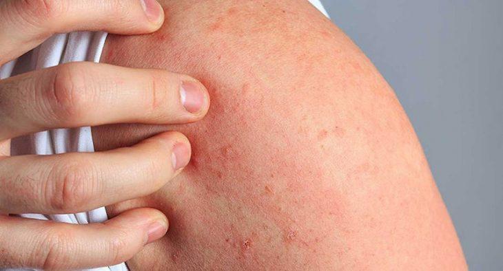 Bệnh phong ngứa là bệnh về da thường gặp