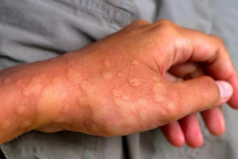 Cần liên hệ bác sĩ sớm để điều trị dứt điểm nổi mề đay khắp người