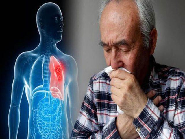 Chữa viêm phế quản mãn tính ở người lớn