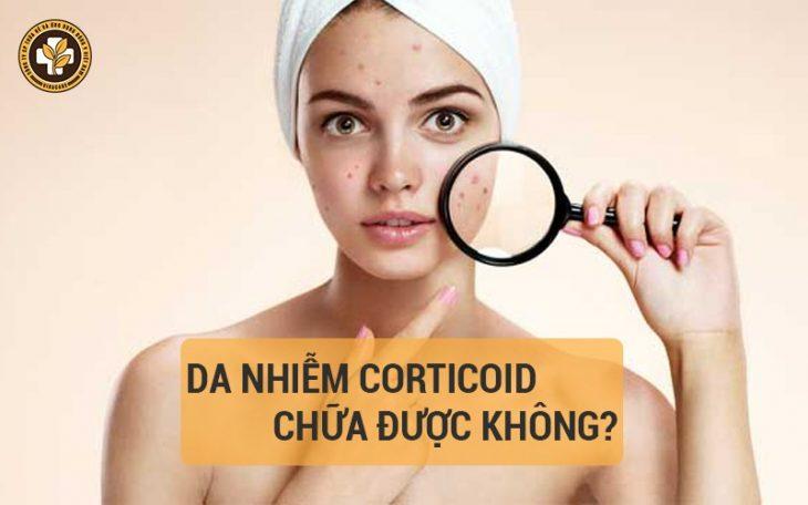 Da nhiễm corticoid có chữa được không