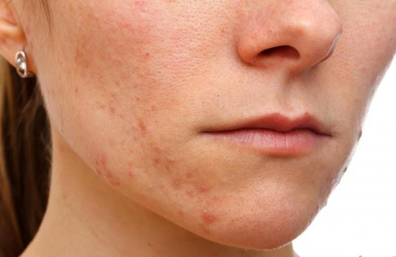 Biểu hiện của da nhiễm Corticoid là da nổi mẩn đỏ, tróc vảy, mỏng, lộ rõ các mao mạch