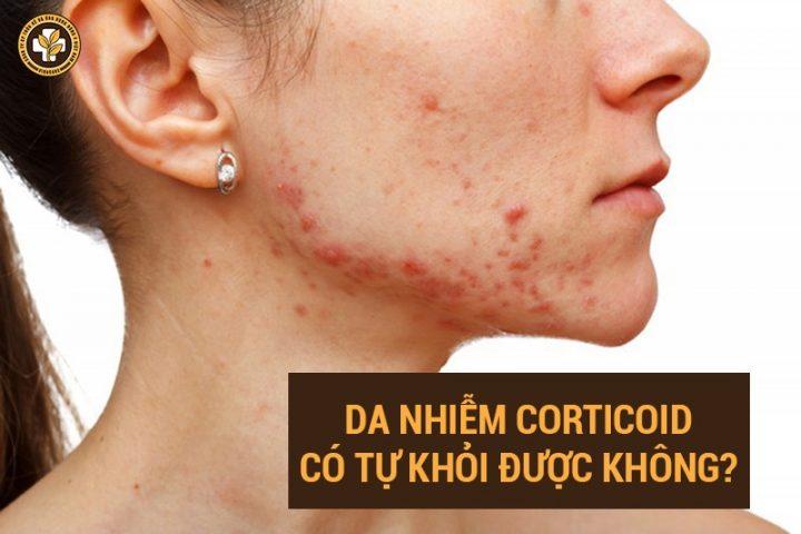 da nhiễm corticoid có tự khỏi không