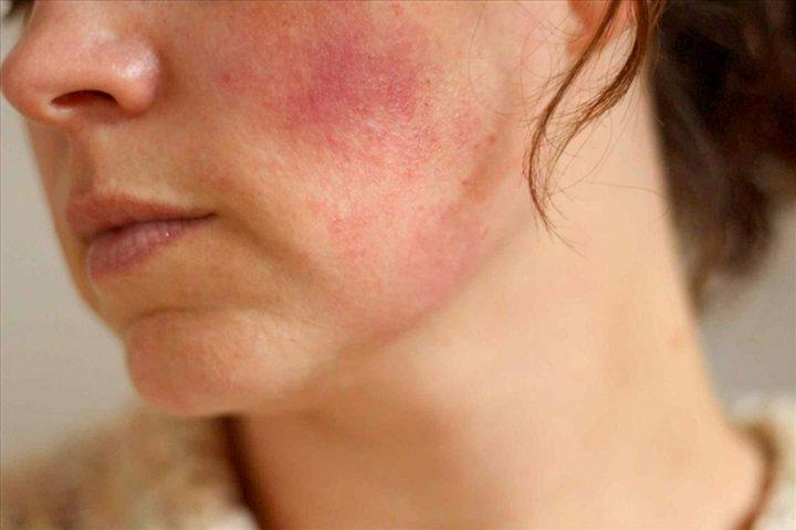 Biểu hiện dị ứng da mặt thường xuất hiện các mẩn đỏ trên da