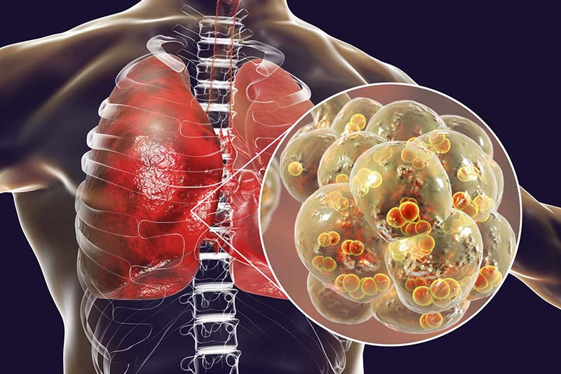Vi khuẩn, vi trùng là nguyên nhân gây nên tình trạng bội nhiễm ở bệnh hen phế quản