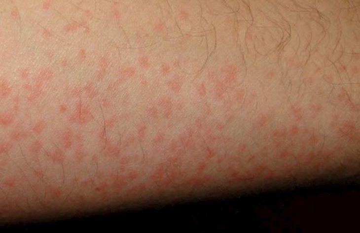 Nổi mẩn đỏ không ngứa là dấu hiệu của rất nhiều bệnh về da thường gặp