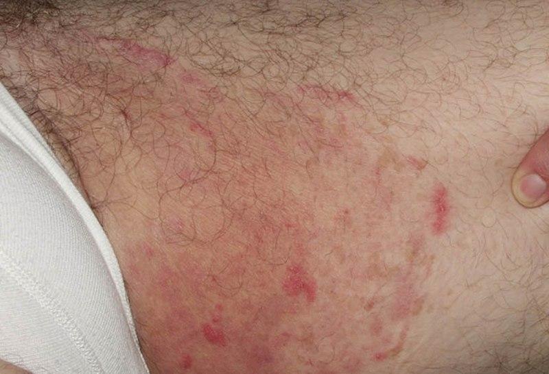 Nổi mẩn đỏ không ngứa ở háng do dị ứng tiếp xúc