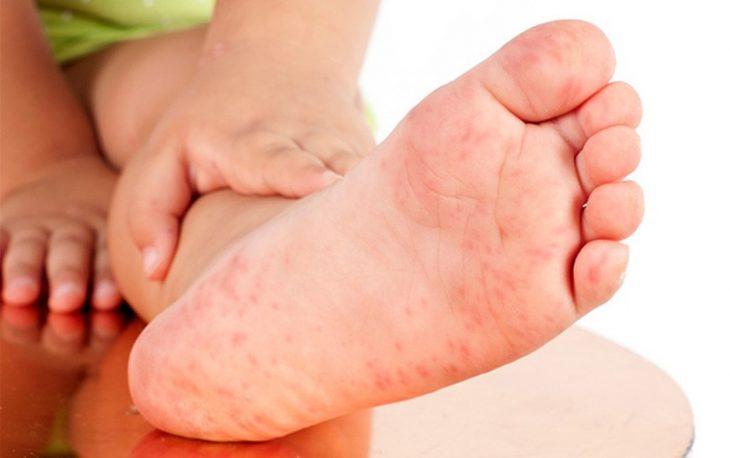 Viêm da tiếp xúc trên chân