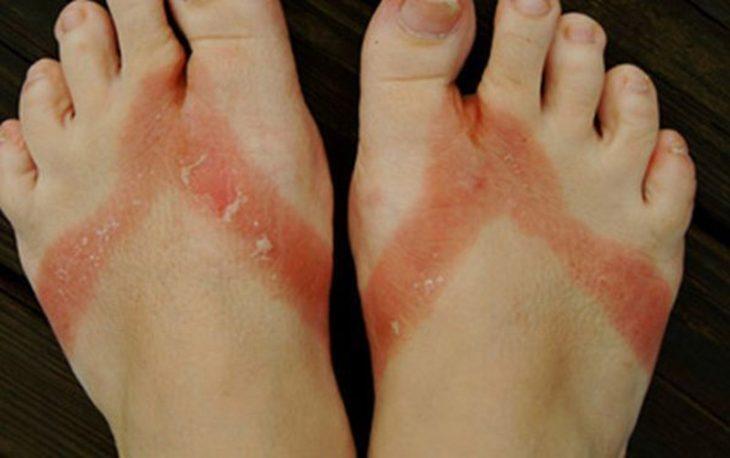 Nốt mề đay, mẩn ngứa ở chân do mang giày dép quá chật