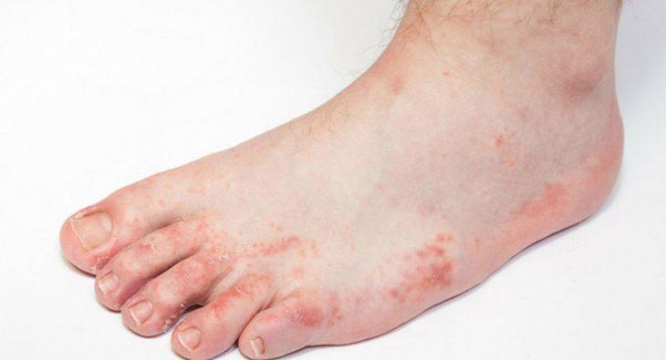 Chàm tổ đỉa nổi mẩn đỏ ngứa ở chân