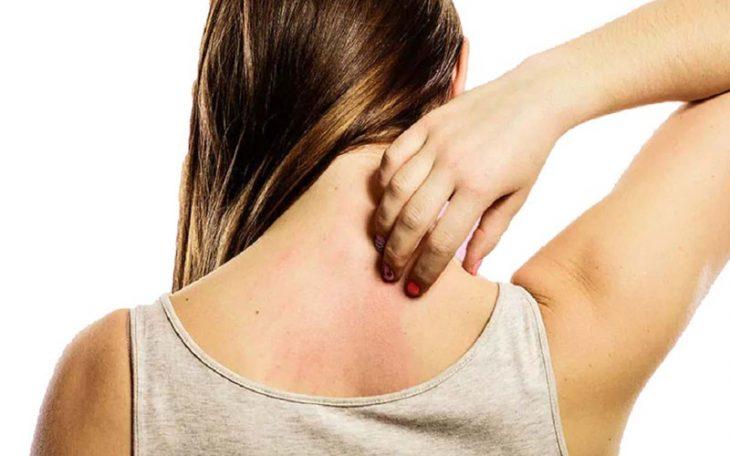 Nổi mẩn đỏ ngứa ở lưng, bụng là dấu hiệu của bệnh gì