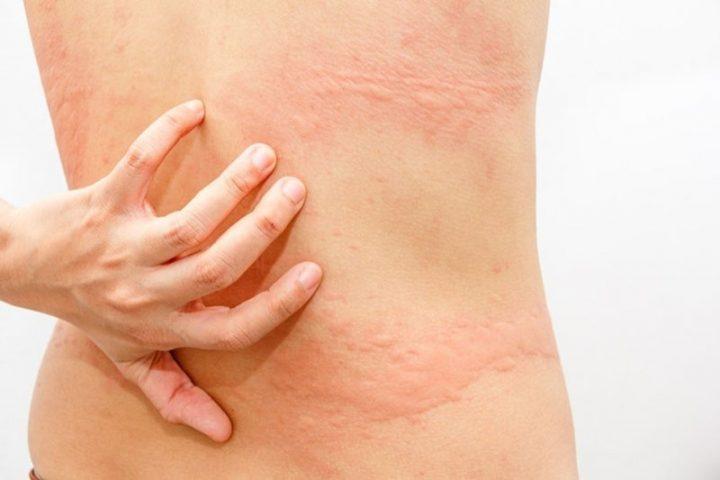 Bị nổi mẩn đỏ ở lưng không ngứa là bệnh gì? Cách điều trị thế nào?
