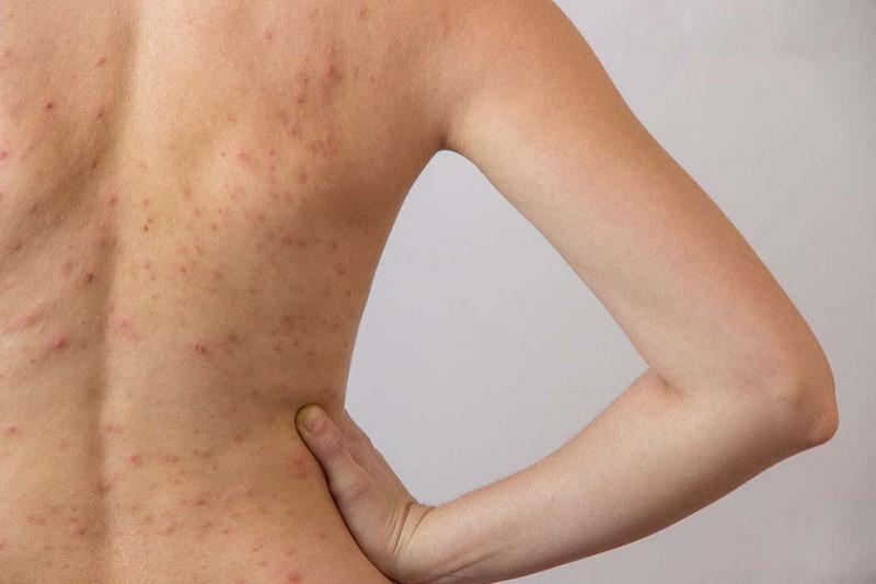 Nổi mẩn đỏ ở lưng nhưng không ngứa có thể là biểu hiện của bệnh viêm da cơ địa