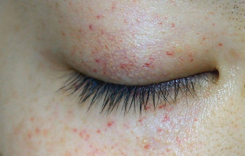 Nổi mẩn đỏ quanh mắt khiến người bệnh ngứa ngáy khó chịu