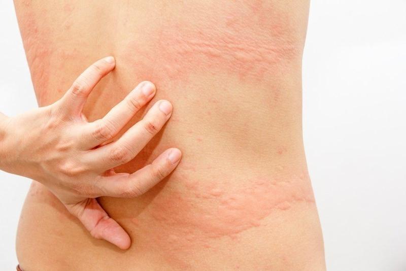 Phát ban đỏ không sốt là bệnh về da thường gặp
