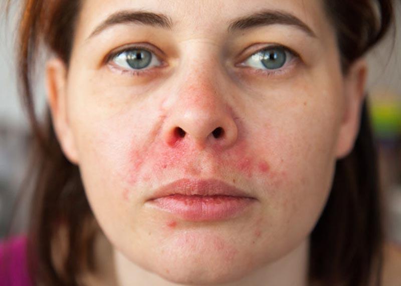 Nguyên nhân dẫn đến viêm da tiết bã có thể do nhiễm Corticoid
