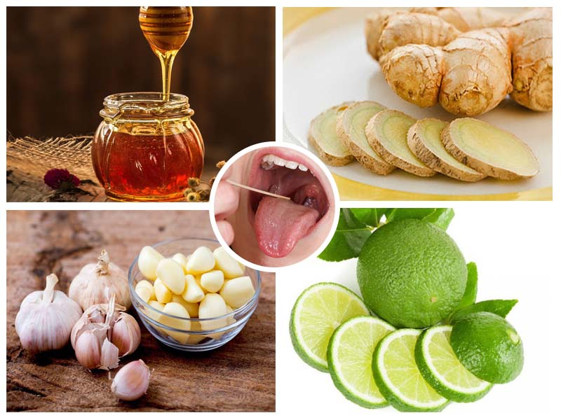 Có nhiều nguyên liệu tự nhiên tại nhà có thể cải thiện bệnh viêm họng hạt ở lưỡi