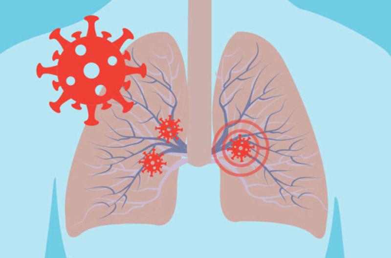 Virus và vi khuẩn là nguyên nhân chính gây viêm phế quản phổi ở trẻ