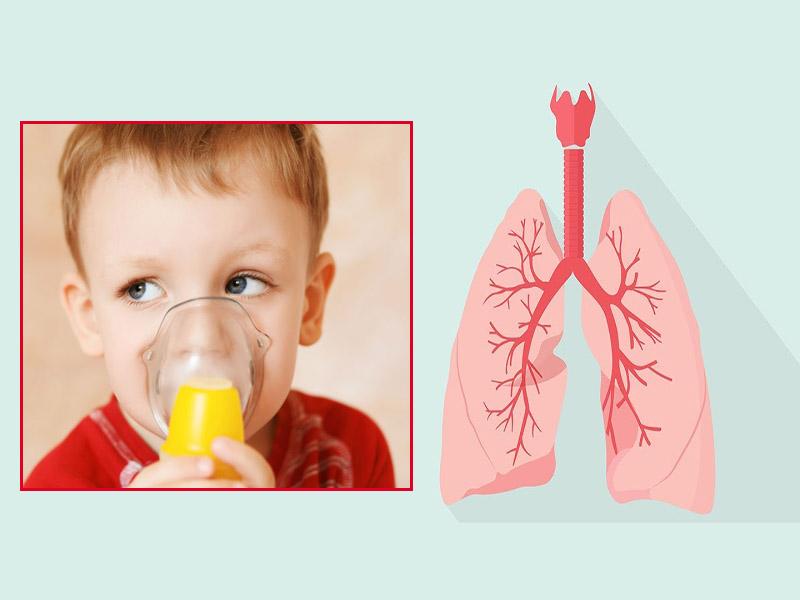 Viêm phế quản phổi ở trẻ em là một tình trạng viêm đường hô hấp dưới mức độ nặng