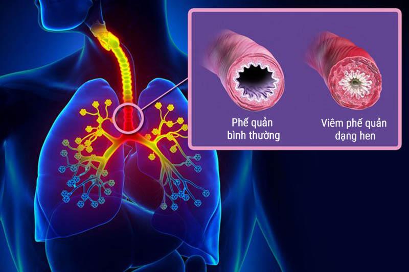 Viêm phế quản dạng hen làm bít tắc đường thở, gây khó thở nặng