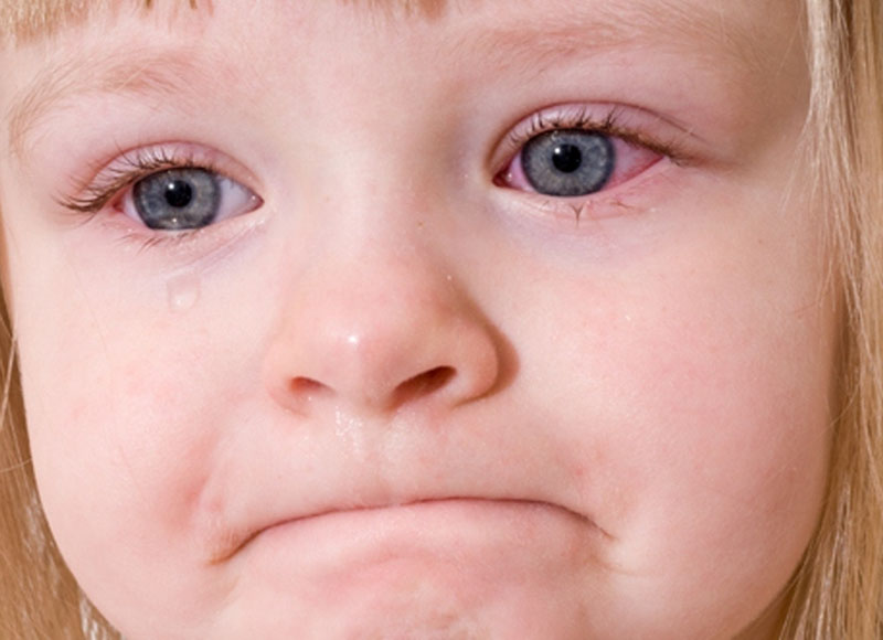 Trẻ dễ bị nhiễm trùng mắt trong giai đoạn cấp của viêm xoang