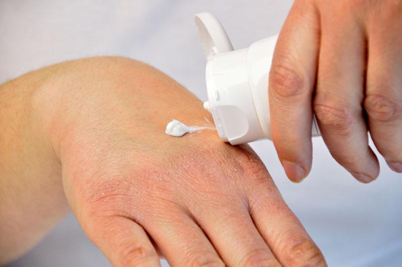 Các loại thuốc bôi có thể cải thiện nhanh triệu chứng ngứa, sẩn đỏ khi nổi mề đay