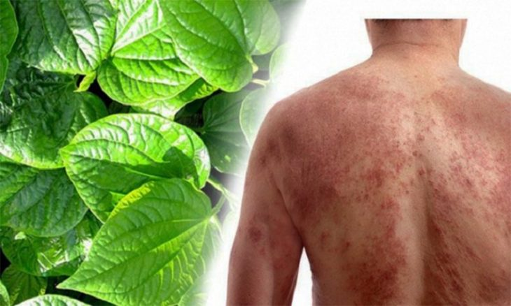12 cách chữa viêm da cơ địa dân gian tại nhà nhiều người áp dụng