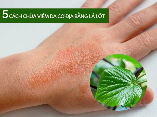 5 Cách chữa viêm da cơ địa bằng lá lốt rẻ tiền, hết ngứa nhanh