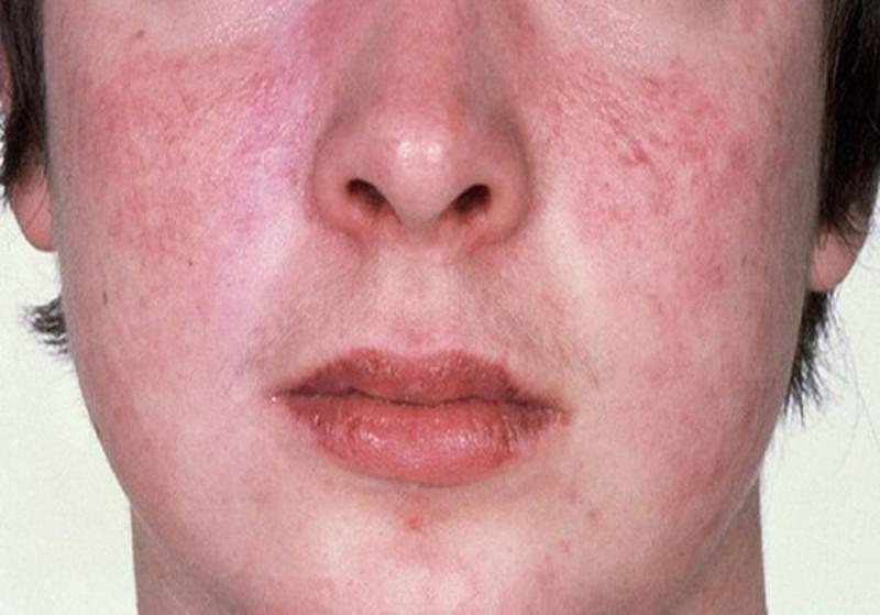 Nếu không chăm sóc, điều trị tốt tình trạng da mặt khô ngứa mẩn đỏ có thể bị bội nhiễm nghiêm trọng