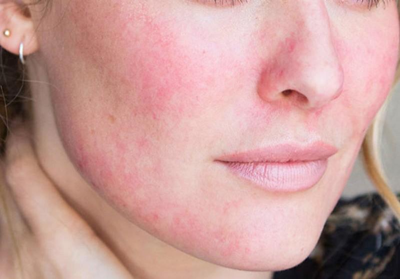 Dị ứng mỹ phẩm cũng khiến cho da mặt khô ngứa mẩn đỏ