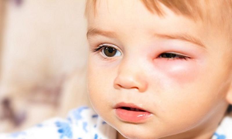 Dấu hiệu viêm xoang gây biến chứng đến mắt
