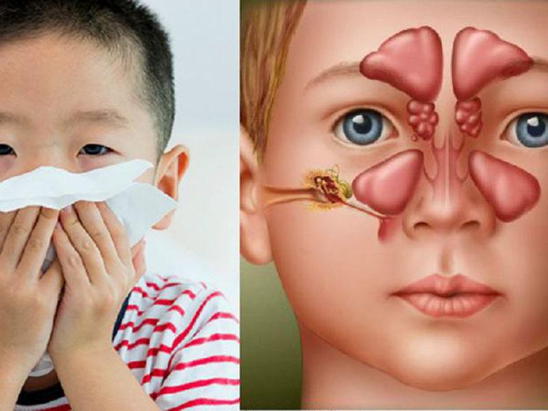 Dịch mũi của trẻ có màu vàng hoặc xanh, mùi hôi là biểu hiện của viêm xoang