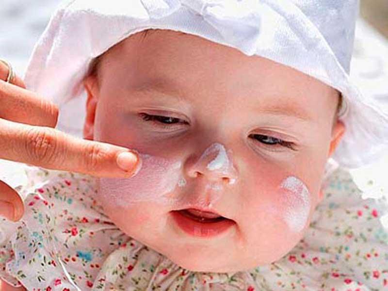 Dùng thuốc bôi chữa mề đay ở trẻ