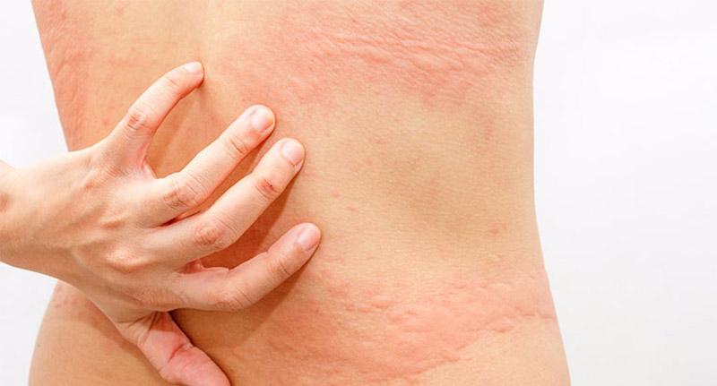 Người bị dị ứng mề đay cần lưu ý khi điều trị bệnh bằng lá đơn đỏ để cho hiệu quả tốt