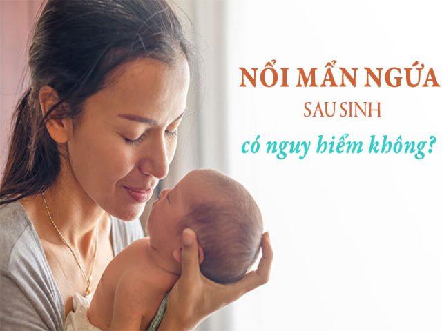 Mẹ sau sinh bị nổi mẩn ngứa có nguy hiểm không? Cách chữa nhanh chóng