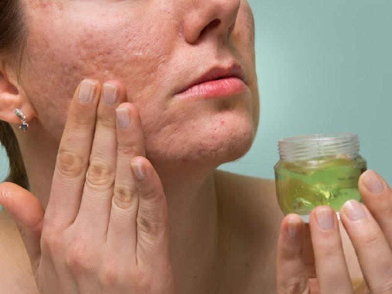 Bôi trực tiếp gel nha đam có thể cải thiện các tổn thương tại vùng da bị bệnh