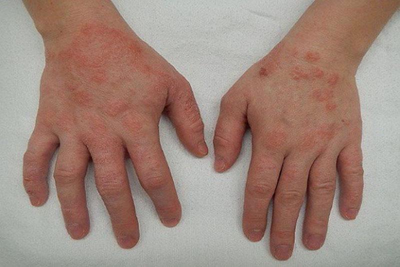 Nguyên nhân gây bệnh viêm da khác nhau ở từng thể bệnh