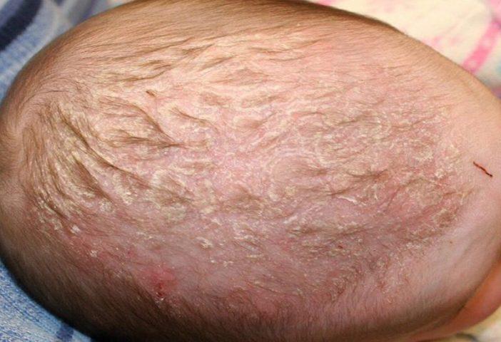 Nổi mẩn đỏ trên đầu ở trẻ em: Nguyên nhân và cách điều trị hiệu quả