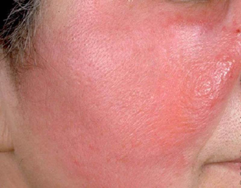 Viêm mô tế bào là một dạng viêm da nặng, gây nhiều biến chứng nguy hiểm