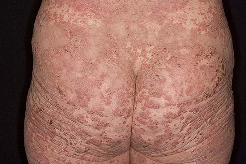 Nổi mẩn ngứa ở mông nếu không được điều trị kịp thời có thể tiềm ẩn nhiều nguy cơ biến chứng nguy hiểm