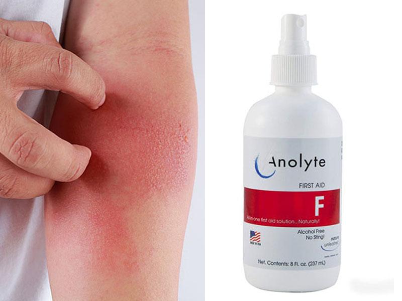 Chữa viêm da cơ địa bằng nước Anolyte có thực sự an toàn, hiệu quả?