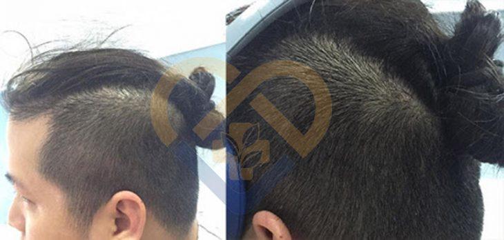 Da đầu của anh Lê Nam đã trở lại trạng thái bình thường sau 1 liệu trình dùng An Bì Thang