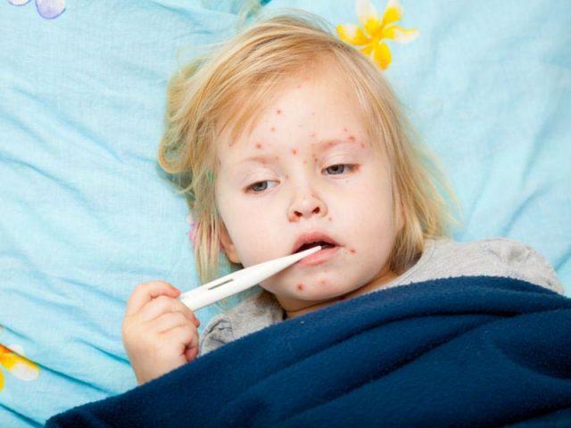 Sốt nổi mẩn đỏ ngứa ở trẻ em là dấu hiệu bệnh gì? Cha mẹ cần làm gì để hạ sốt, giảm ngứa nhanh