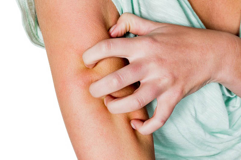 Các loại thuốc tây giúp cải thiện nhanh triệu chứng ngứa dữ dội ngay tại thời điểm dùng thuốc