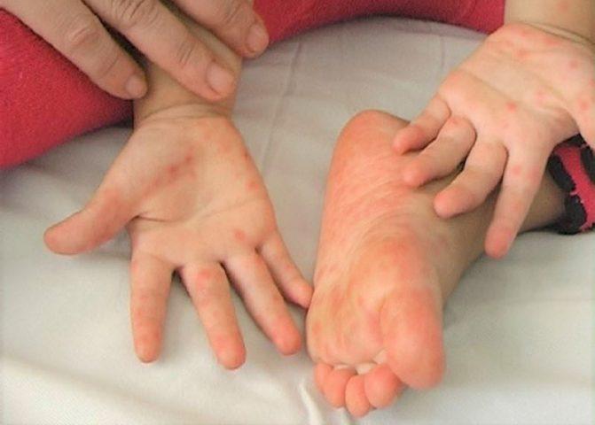 Trẻ mắc bệnh Kawasaki nổi các nốt mẩn đỏ ở chân tay hoặc toàn thân