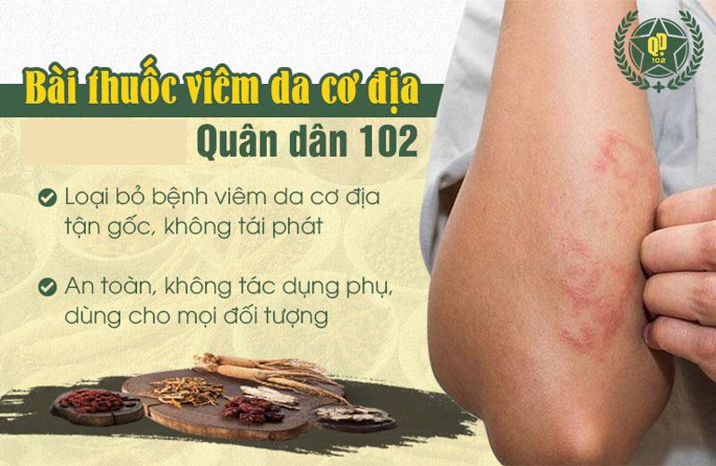 Bài thuốc viêm da cơ địa Quân dân 102 được đánh giá cao nhờ khả năng chữa bệnh dứt điểm, an toàn, không tái phát
