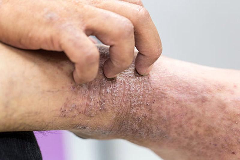 Ngứa mãn tính, nhiễm trùng da là những biến chứng dễ gặp, làm mất thẩm mỹ, gây nhiều ảnh hưởng tới chất lượng sống của người bệnh