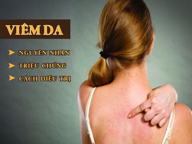 Viêm da - Nguyên nhân, triệu chứng, phân loại và cách điều trị hiệu quả